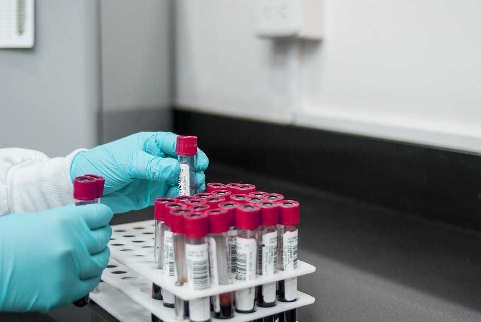Analysis of laboratory diagnostic equipment market in Poland